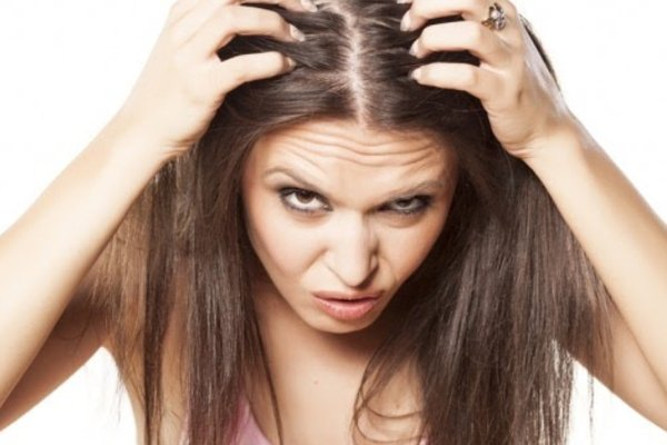 You can get itchy if you don't wash your hair every day